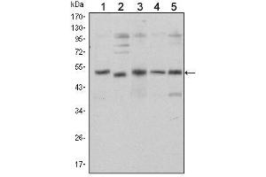 image for anti-SMAD, Mothers Against DPP Homolog 5 (SMAD5) antibody (ABIN1500996)