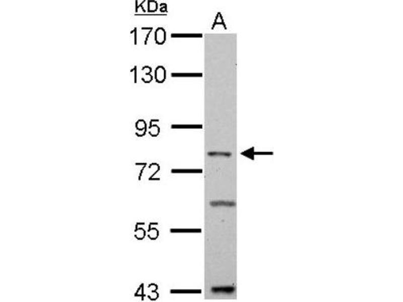 TNFAIP3 抗体 (Tumor Necrosis Factor, alpha-Induced Protein 3) (C-Term)