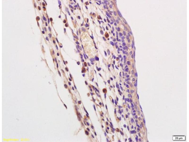 Immunohistochemistry (IHC) image for anti-Toll-Like Receptor 9 (TLR9) antibody (ABIN749588)