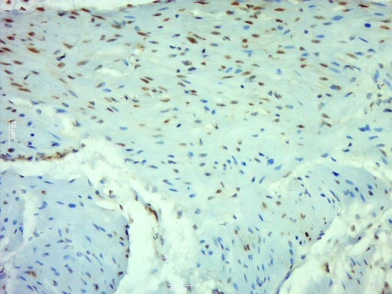 Immunohistochemistry (Paraffin-embedded Sections) (IHC (p)) image for anti-p65 Antikörper (Nuclear Factor-KB P65) (AA 50-100) (ABIN668961)