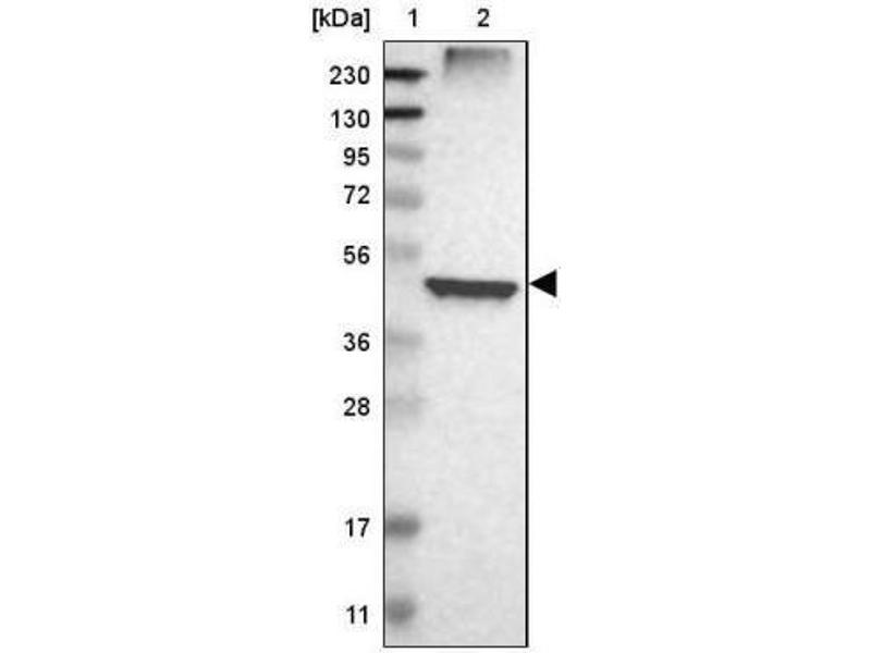 Western Blotting (WB) image for anti-Farnesyl-Diphosphate Farnesyltransferase 1 (FDFT1) antibody (ABIN4311300)