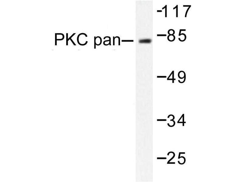 image for anti-PKC alpha antibody (Protein Kinase C, alpha) (ABIN272065)