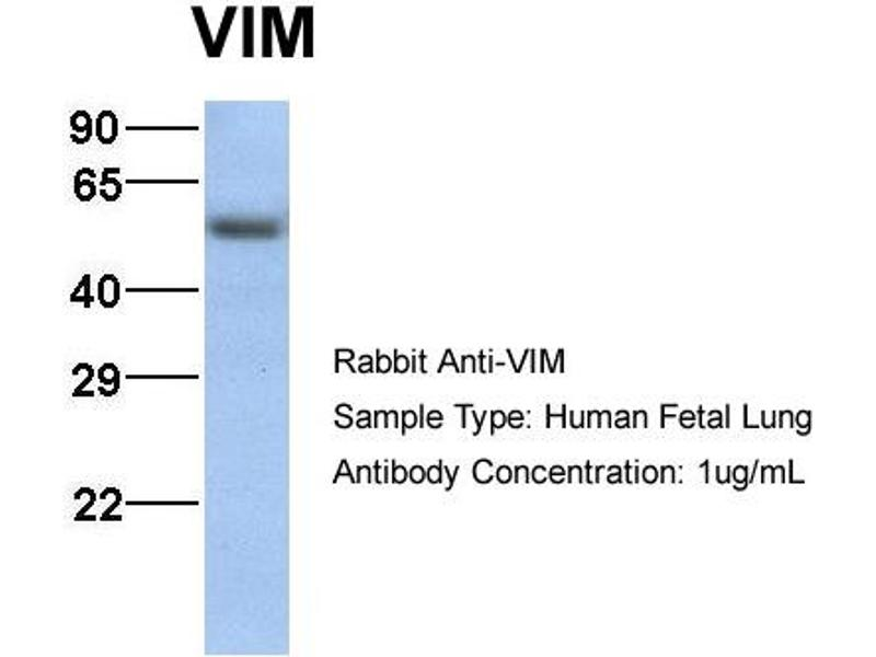 Western Blotting (WB) image for anti-Vimentin (VIM) (C-Term) antibody (ABIN2783289)