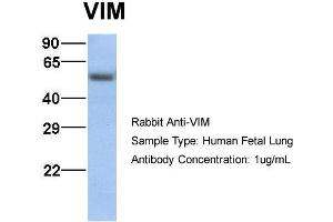 Western Blotting (WB) image for anti-Vimentin (VIM) (C-Term) antibody (ABIN2783289)