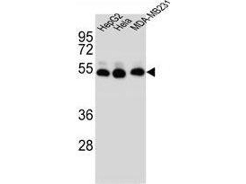 Western Blotting (WB) image for anti-TUBB2B antibody (Tubulin, beta 2B) (AA 19-47) (ABIN955391)