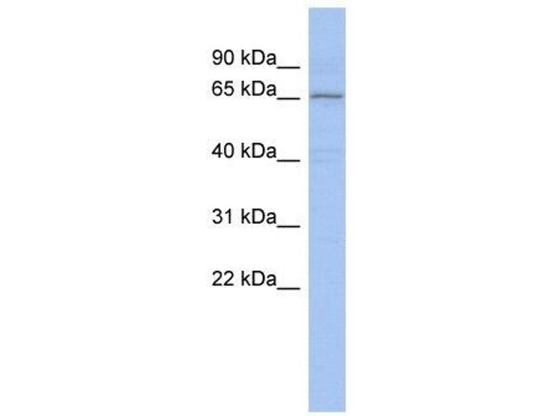 Western Blotting (WB) image for anti-Protein Inhibitor of Activated STAT, 1 (PIAS1) (Middle Region) antibody (ABIN2780998)