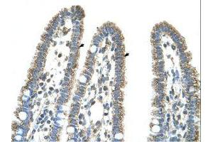 Image no. 1 for anti-Carbamoyl-Phosphate Synthase 1, Mitochondrial (CPS1) (AA 951-1000) antibody (ABIN320972)