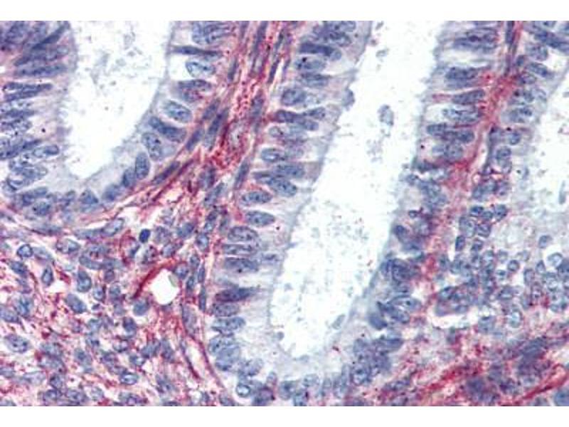 Immunohistochemistry (IHC) image for anti-Angiotensin II Receptor, Type 2 (AGTR2) (Internal Region) antibody (ABIN1048323)
