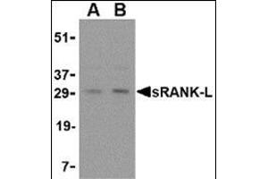 Western Blotting (WB) image for anti-TNFSF11 antibody (Tumor Necrosis Factor (Ligand) Superfamily, Member 11) (Center) (ABIN500805)
