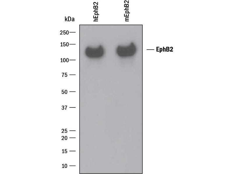 Western Blotting (WB) image for anti-EPH Receptor B2 (EPHB2) (AA 27-548) antibody (ABIN4900040)
