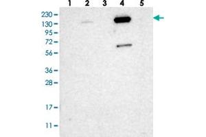 Image no. 3 for anti-Zinc Finger Protein 629 (ZNF629) antibody (ABIN5591410)