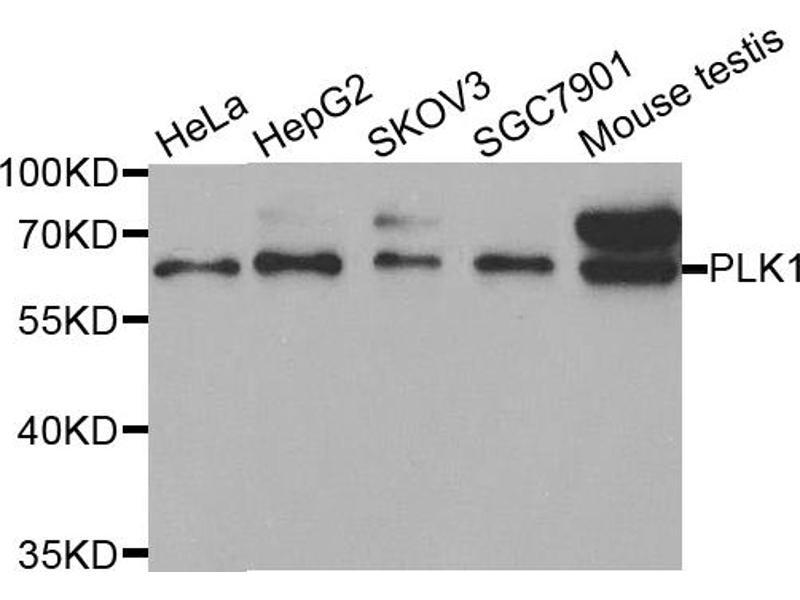 Image no. 1 for anti-Polo-Like Kinase 1 (PLK1) antibody (ABIN6569266)