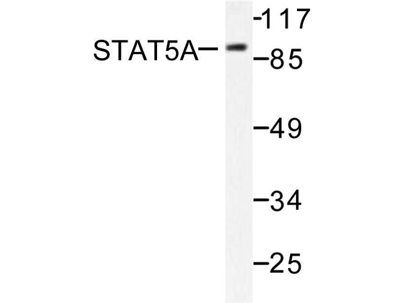 image for anti-STAT5A antibody (Signal Transducer and Activator of Transcription 5A) (ABIN271829)
