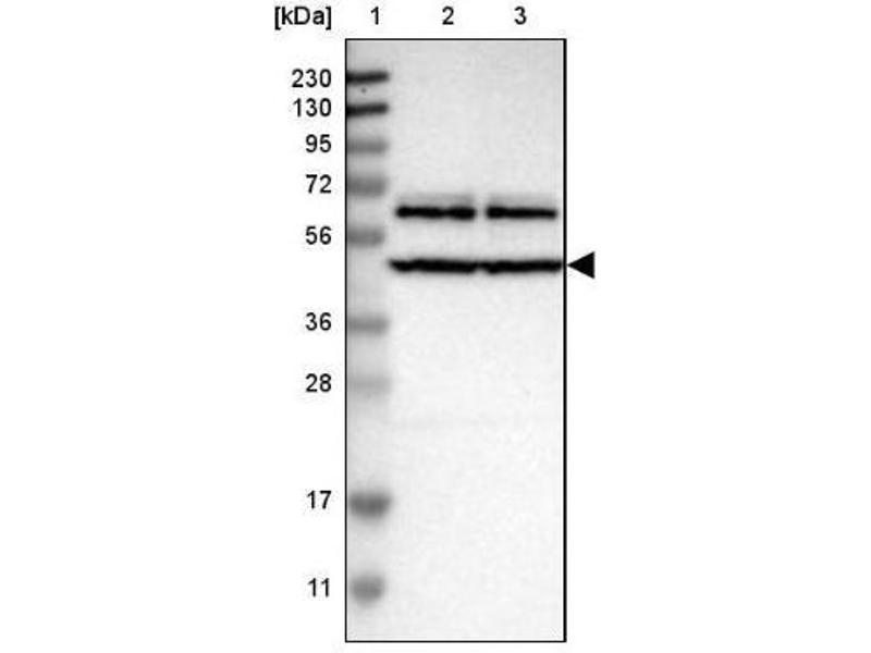 Western Blotting (WB) image for anti-GTPase Activating Protein (SH3 Domain) Binding Protein 2 (G3BP2) antibody (ABIN4313043)