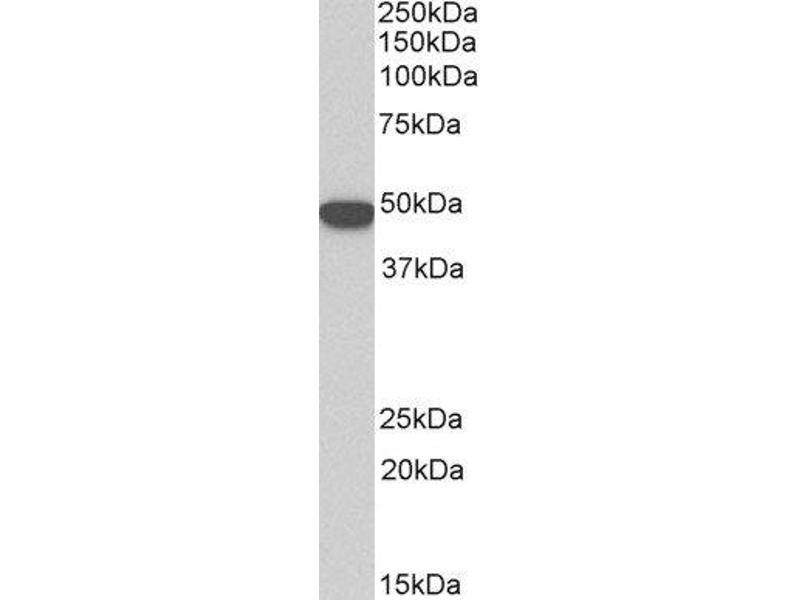 Western Blotting (WB) image for anti-Keratin 18 (KRT18) (Internal Region) antibody (ABIN5609867)