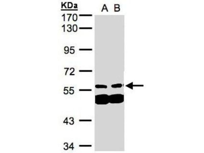 Western Blotting (WB) image for anti-PIAS4 Antikörper (Protein Inhibitor of Activated STAT, 4) (C-Term) (ABIN441248)