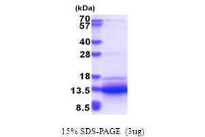 Image no. 1 for Small VCP/p97-Interacting Protein (SVIP) (AA 1-77) protein (His tag) (ABIN5853642)