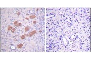 Immunohistochemistry (IHC) image for anti-Neutrophil Cytosolic Factor 4, 40kDa (NCF4) (pThr154) antibody (ABIN1531454)