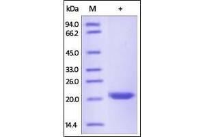 Image no. 1 for Metalloproteinase Inhibitor 2 (TIMP2) (AA 27-220) protein (His tag) (ABIN2181824)