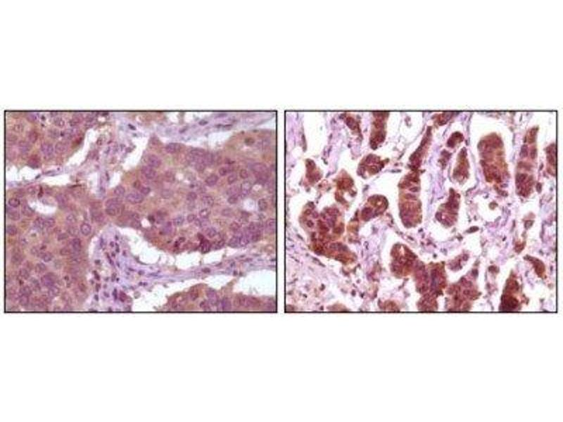 Immunohistochemistry (Paraffin-embedded Sections) (IHC (p)) image for anti-ERK2 Antikörper (Mitogen-Activated Protein Kinase 1) (ABIN258758)