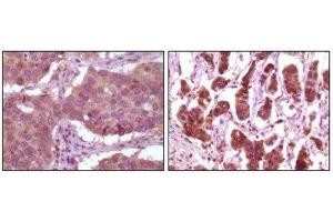 Immunohistochemistry (Paraffin-embedded Sections) (IHC (p)) image for anti-ERK2 antibody (Mitogen-Activated Protein Kinase 1) (ABIN258758)