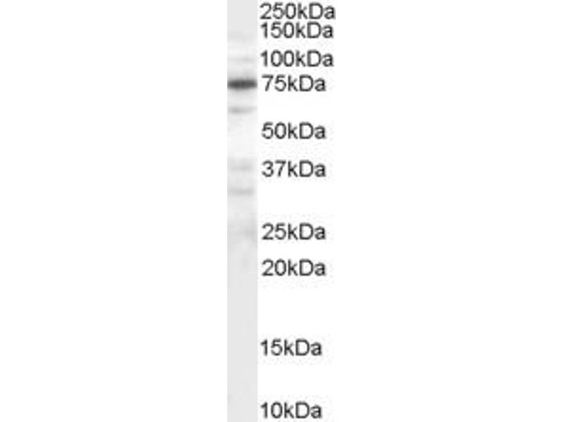 Western Blotting (WB) image for anti-MELK antibody (Maternal Embryonic Leucine Zipper Kinase) (C-Term) (ABIN263108)