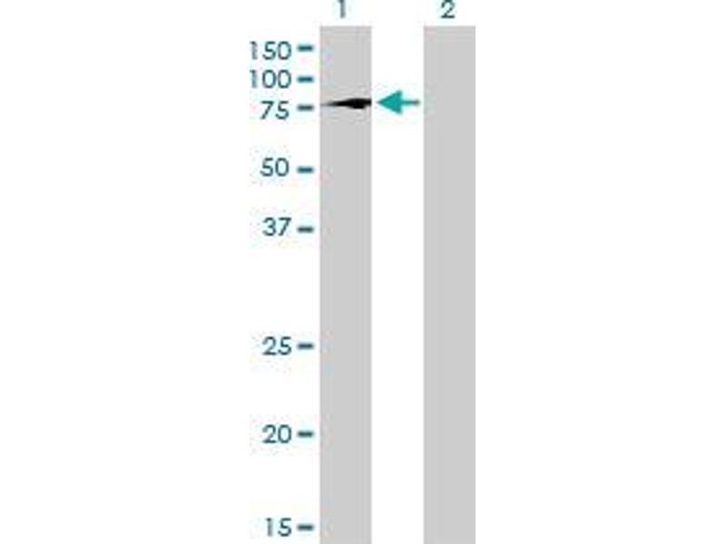 Immunohistochemistry (IHC) image for anti-T-Box 2 (TBX2) (AA 603-703) antibody (ABIN4948268)