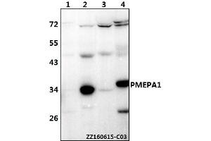 Image no. 1 for anti-Prostate Transmembrane Protein, Androgen Induced 1 (PMEPA1) (AA 115-159) antibody (ABIN6711140)