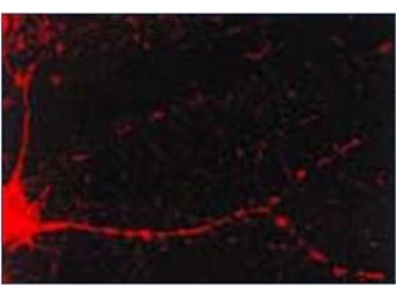 Immunofluorescence (IF) image for anti-CAMK2A antibody (Calcium/calmodulin-Dependent Protein Kinase II alpha) (ABIN492419)