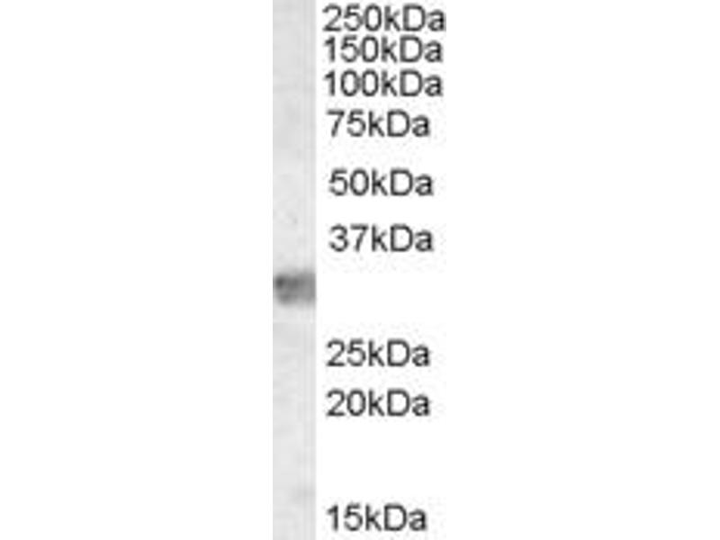 Western Blotting (WB) image for anti-MYD88 antibody (Myeloid Differentiation Primary Response Gene (88)) (ABIN2444515)