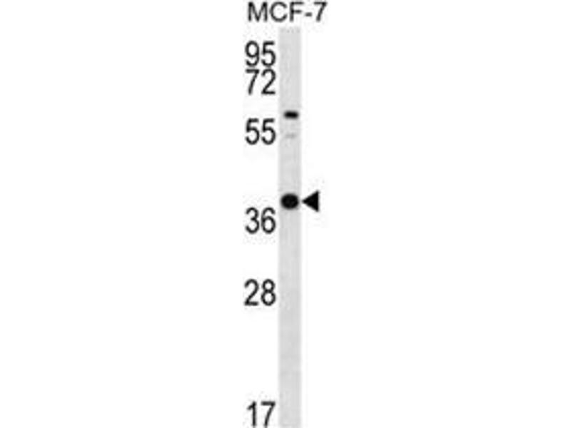 Western Blotting (WB) image for anti-Yip1 Interacting Factor Homolog B (S. Cerevisiae) (YIF1B) (AA 81-110), (N-Term) antibody (ABIN955611)
