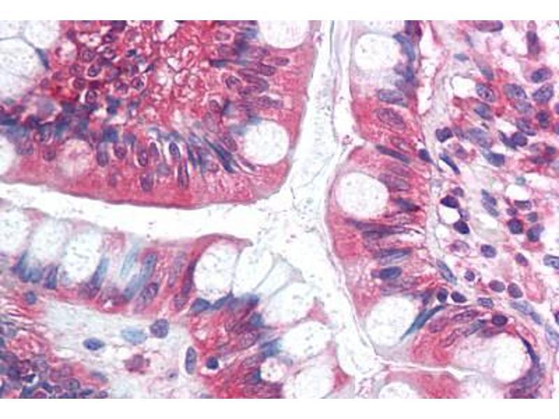 Immunohistochemistry (IHC) image for anti-Splicing Factor 1 (SF1) (AA 517-566) antibody (ABIN6736753)
