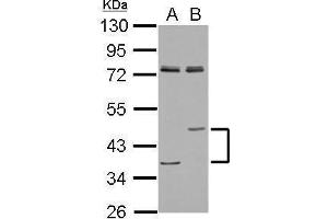 Image no. 2 for anti-Lipase A, Lysosomal Acid, Cholesterol Esterase (LIPA) (Center) antibody (ABIN2854960)
