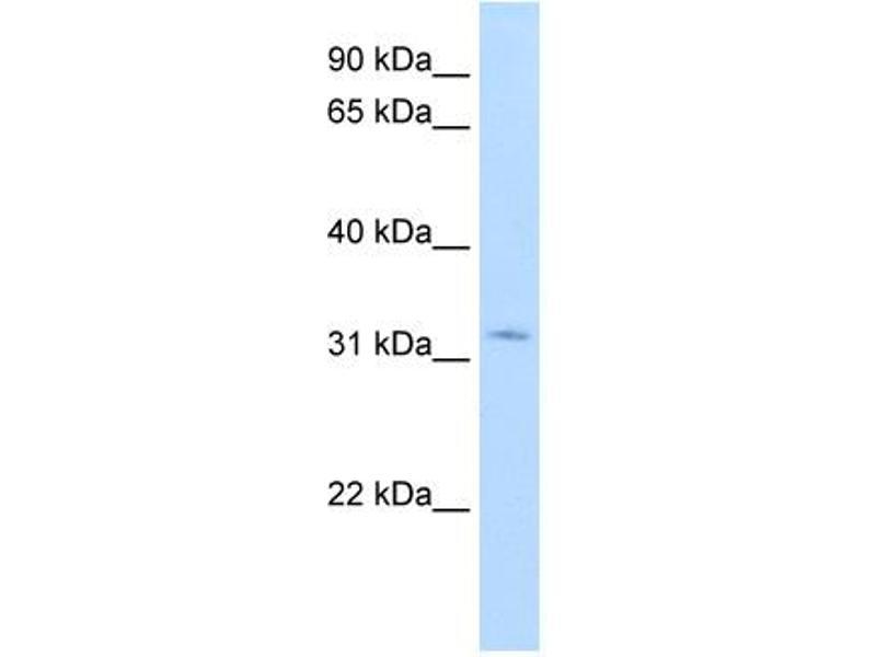 Western Blotting (WB) image for anti-Hydroxysteroid (17-Beta) Dehydrogenase 6 Homolog (Mouse) (HSD17B6) (N-Term) antibody (ABIN2776865)