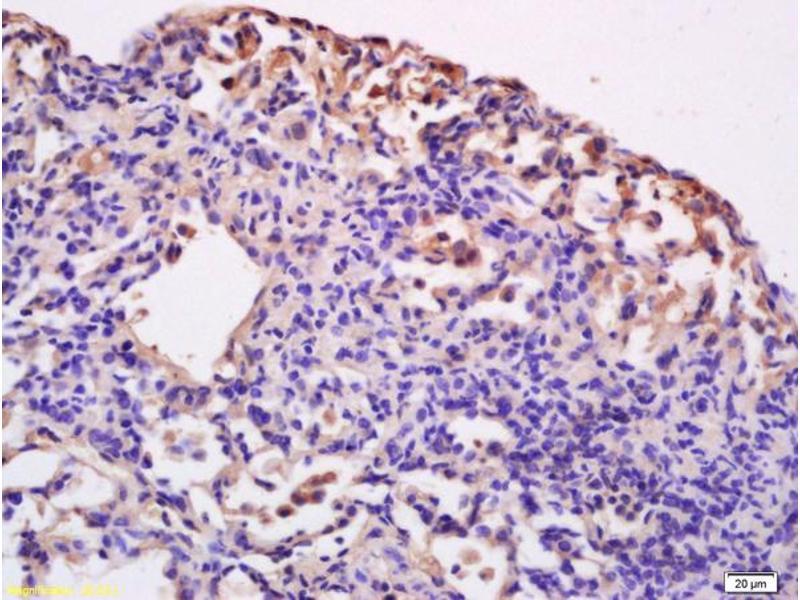Immunohistochemistry (IHC) image for anti-CD86 Molecule (CD86) (AA 130-180) antibody (ABIN736701)