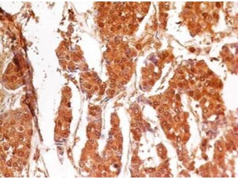 Immunohistochemistry (Paraffin-embedded Sections) (IHC (p)) image for anti-Caspase 3 Antikörper (Caspase 3, Apoptosis-Related Cysteine Peptidase) (ABIN252651)