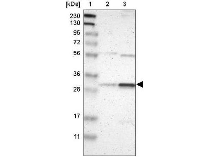 Western Blotting (WB) image for anti-RAD1 Homolog (S. Pombe) (RAD1) antibody (ABIN4349062)