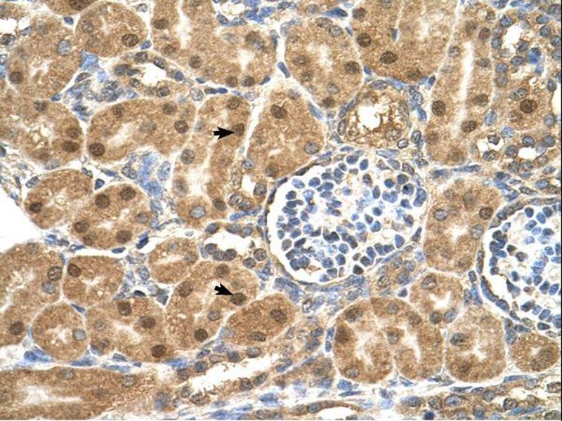 Immunohistochemistry (IHC) image for anti-PDI antibody (Prolyl 4-Hydroxylase, beta Polypeptide) (N-Term) (ABIN310986)
