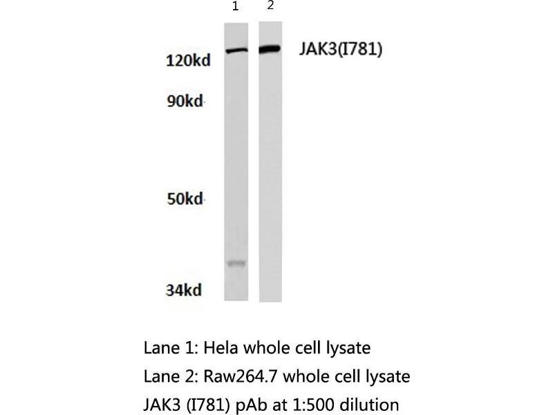 Western Blotting (WB) image for anti-Tyrosine-Protein Kinase JAK3 (JAK3) antibody (ABIN498150)