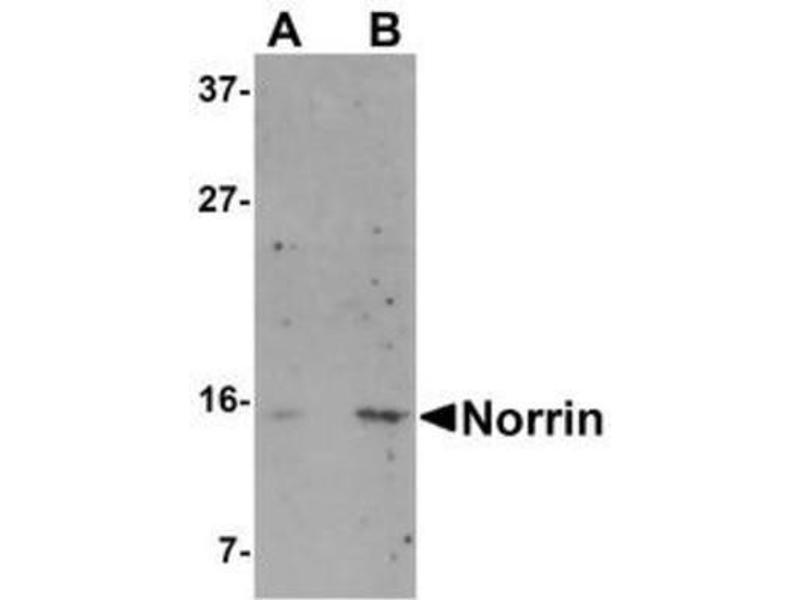 Western Blotting (WB) image for anti-Norrie Disease (Pseudoglioma) (NDP) (N-Term) antibody (ABIN4340370)