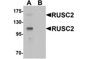 Image no. 2 for anti-RUN and SH3 Domain Containing 2 (RUSC2) (N-Term) antibody (ABIN1450112)