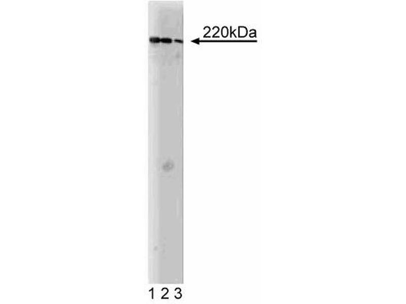 Western Blotting (WB) image for anti-A Kinase (PRKA) Anchor Protein 11 (AKAP11) (AA 11-173) antibody (ABIN968125)