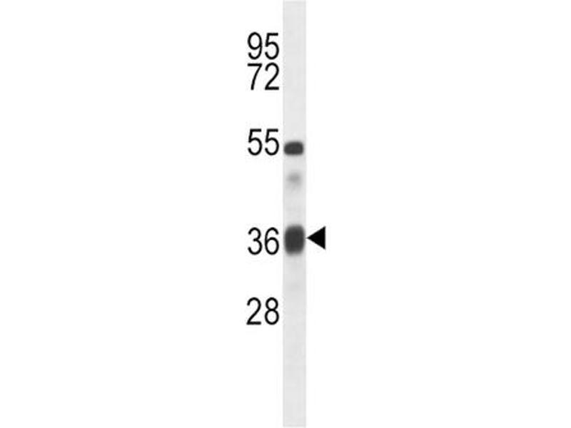 Western Blotting (WB) image for anti-Transforming Growth Factor, beta 1 (TGFB1) antibody (ABIN2996680)