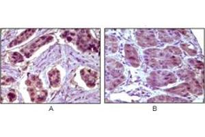 Immunohistochemistry (IHC) image for anti-BCL10 antibody (B-Cell CLL/lymphoma 10) (ABIN1105500)