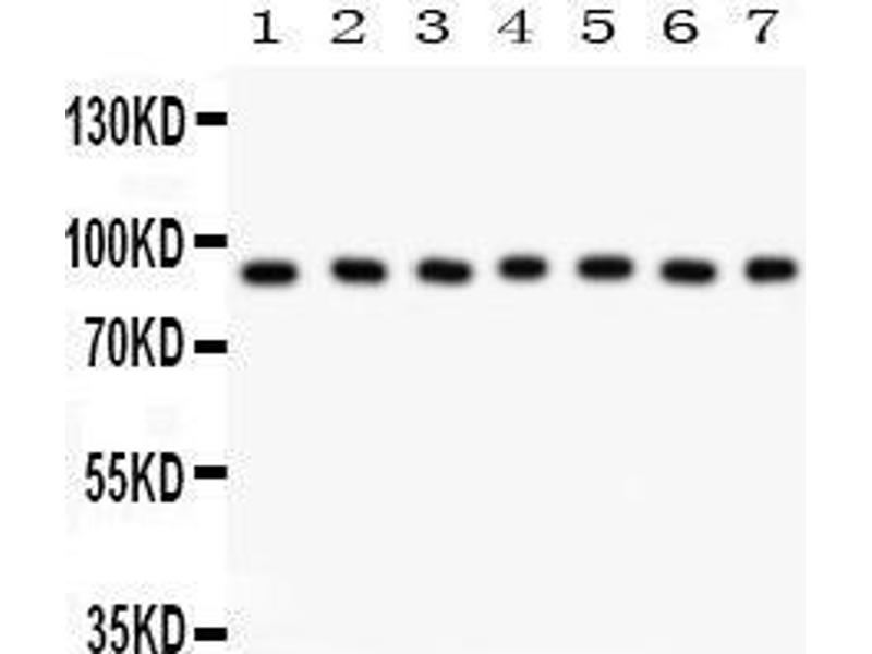 Western Blotting (WB) image for anti-Ribosomal Protein S6 Kinase, 90kDa, Polypeptide 5 (RPS6KA5) (AA 540-665) antibody (ABIN3043424)