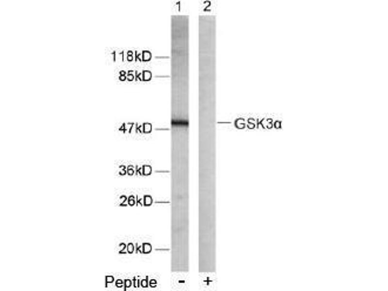 image for anti-GSK3 alpha antibody (Glycogen Synthase Kinase 3 alpha) (Ser21) (ABIN197105)