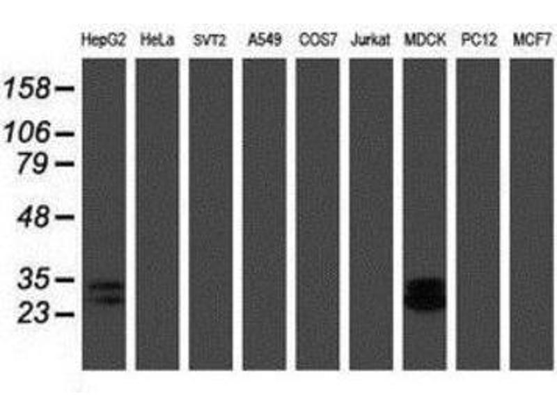 Western Blotting (WB) image for anti-RBPMS 抗体 (RNA Binding Protein with Multiple Splicing) (ABIN4349700)