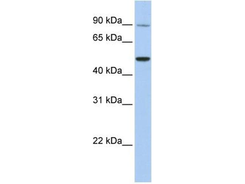 Western Blotting (WB) image for anti-Transient Receptor Potential Cation Channel, Subfamily V, Member 5 (TRPV5) (N-Term) antibody (ABIN487228)
