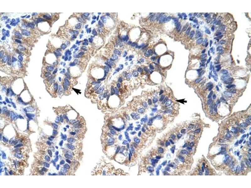 Immunohistochemistry (IHC) image for anti-Zinc Finger Protein 785 (ZNF785) (C-Term) antibody (ABIN183306)