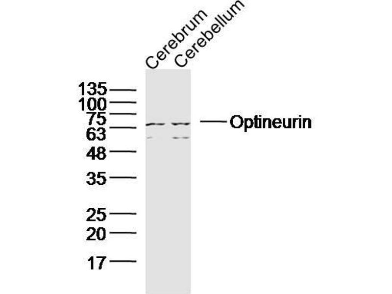 Western Blotting (WB) image for anti-Optineurin (OPTN) antibody (ABIN2178063)